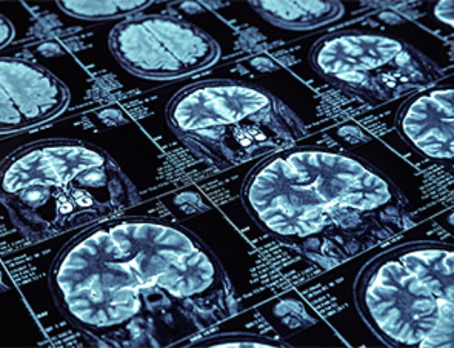 Artificial Intelligence for Medical Imaging Market to Top $2B